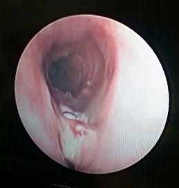 Травмы грудной клетки