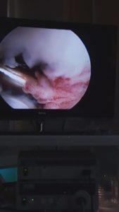 Артроскопия собаке. Лечение хромоты.